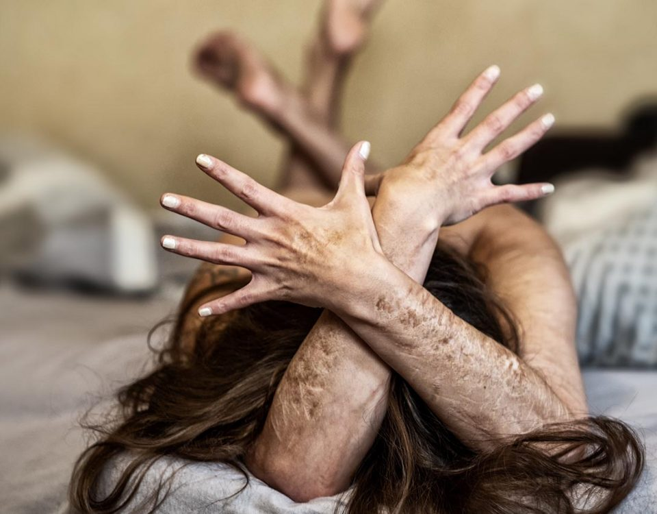 The Signs of Borderline Personality Disorder